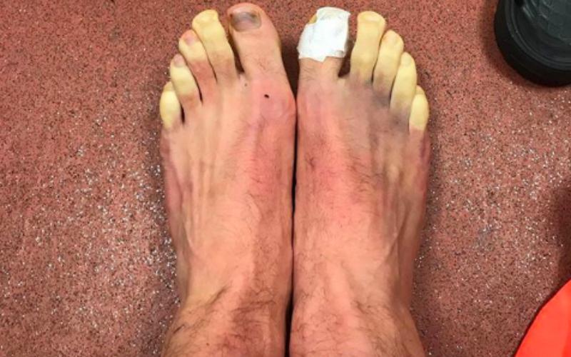 De bevroren voeten van deze topspeler gaan de wereld rond (Foto)