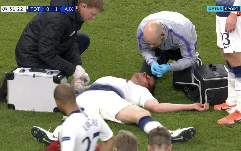Jan Vertonghen loopt vreselijke blessure op tijdens Tottenham-Ajax (VIDEO)